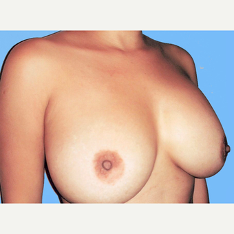 Breast Augmentation after 3731630