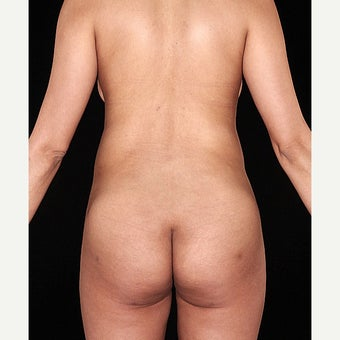 30 year old woman treated with SmartLipo of the flanks after 1726687