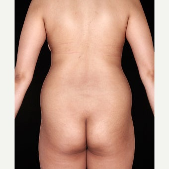 30 year old woman treated with SmartLipo of the flanks before 1726687