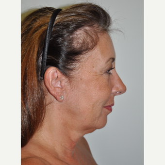 55-64 year old woman treated with Facelift before 3246651