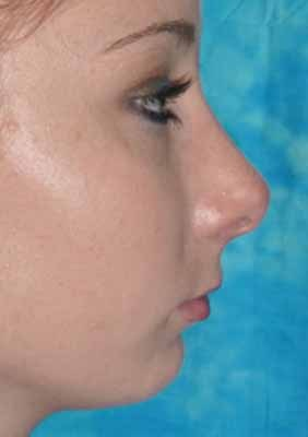 Female Rhinoplasty after 984049