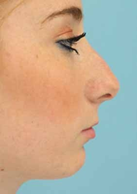 Female Rhinoplasty before 984049