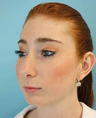 Female Rhinoplasty 984049