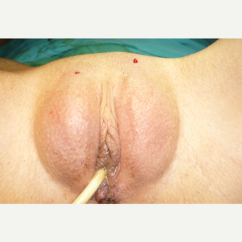 18-24 year old woman treated with Labiaplasty after 3043341