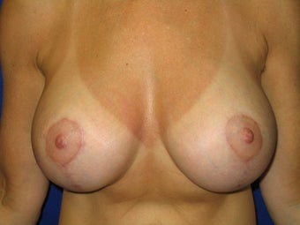Breast Augmentation / Vertical Mastopexy (Breast Lift) after 231778