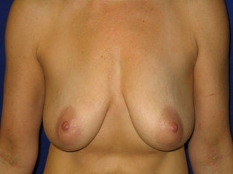 Breast Augmentation / Vertical Mastopexy (Breast Lift) before 231778