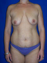 Breast Lift with Implants and Tummy Tuck before 141352