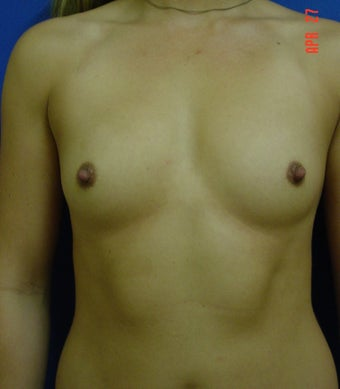 Breast Augmentation before 364529