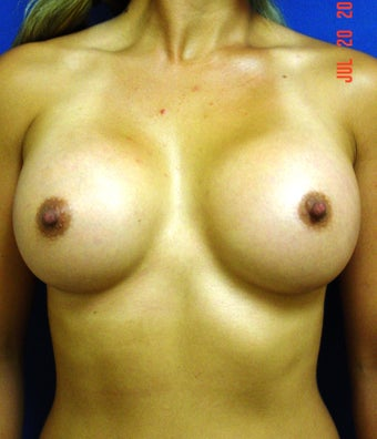 Breast Augmentation after 364529
