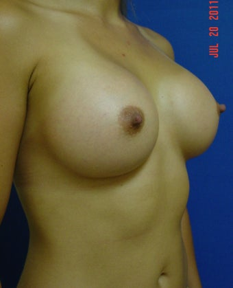 Breast Augmentation 364529