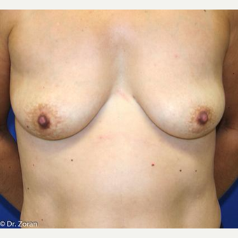 45-54 year old woman treated with Breast Lift with Implants before 3037368