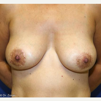 45-54 year old woman treated with Breast Lift with Implants after 3037368