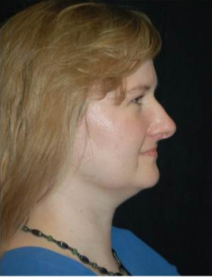 Brow Lift with Liposuction of the Neck before 660516
