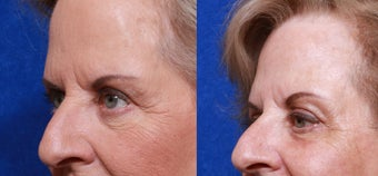 Before and after one treatment of Total FX after 323617