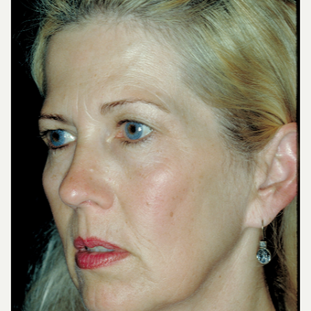 45-54 year old woman treated with Facelift - using a laser vertical technique before 3664773