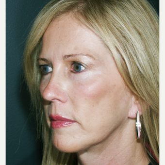 45-54 year old woman treated with Facelift - using a laser vertical technique after 3664773