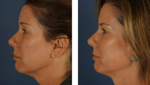 Botox and Fillers Around the Eyes - Female after 1290365