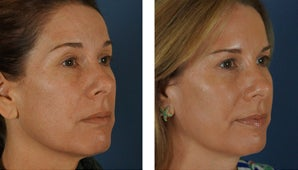 Botox and Fillers Around the Eyes - Female before 1290365