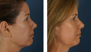 Botox and Fillers Around the Eyes - Female 1290365