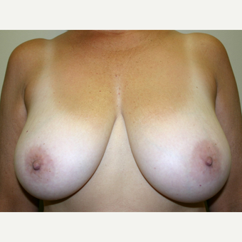 45-54 year old woman treated with Breast Lift before 3501319