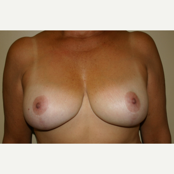 45-54 year old woman treated with Breast Lift after 3501319