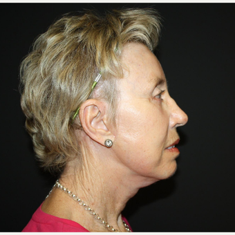 65-74 year old woman treated with Facelift after 3033475