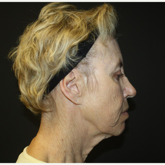 65-74 year old woman treated with Facelift before 3033475