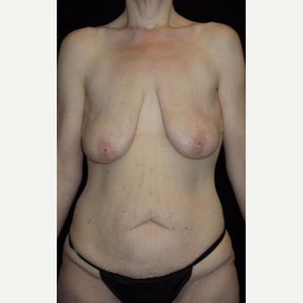 41 year old woman treated with Mommy Makeover before 3092785