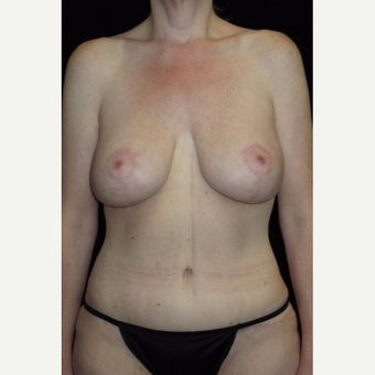 41 year old woman treated with Mommy Makeover after 3092785