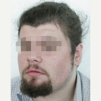 25-34 year old man treated with Beard Transplant before 3238627