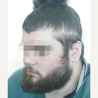 25-34 year old man treated with Beard Transplant after 3238627