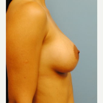 27 year old woman treated with Breast Implants, B to full C after 3624397