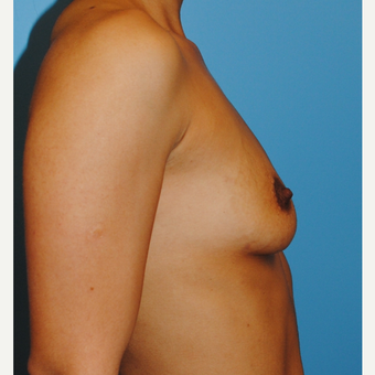 27 year old woman treated with Breast Implants, B to full C before 3624397