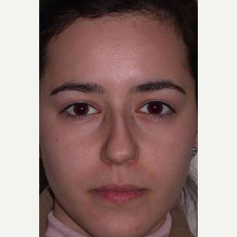 18-24 year old woman treated with Rhinoplasty before 3499819