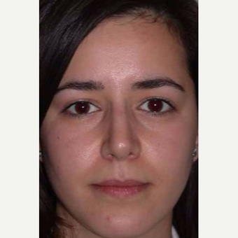 18-24 year old woman treated with Rhinoplasty after 3499819