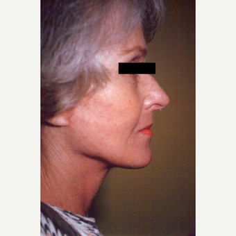 65-74 year old woman treated with Facelift after 3538779