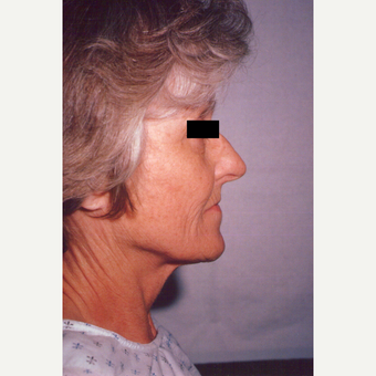 65-74 year old woman treated with Facelift before 3538779