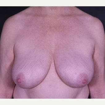 55-64 year old woman treated with Breast Implant Removal after 2600523