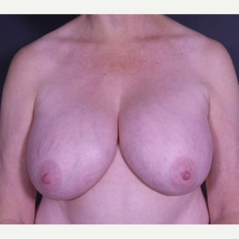 55-64 year old woman treated with Breast Implant Removal before 2600523