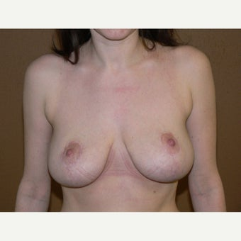 25-34 year old woman treated with Breast Reduction 1792742