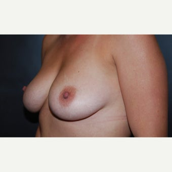 25-34 year old woman treated with Breast Augmentation before 2467404