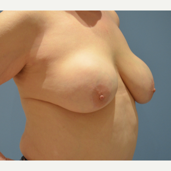 65-74 year old woman treated with Breast Reduction before 3059052