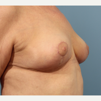 65-74 year old woman treated with Breast Reduction after 3059052