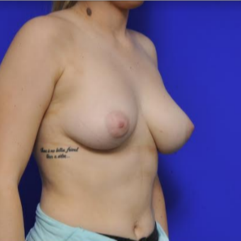 35-year-old woman - Breast Implants before 3331697