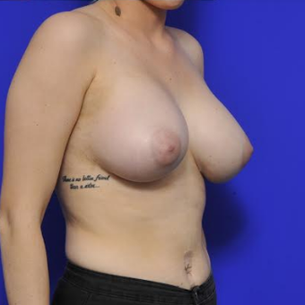 35-year-old woman - Breast Implants after 3331697