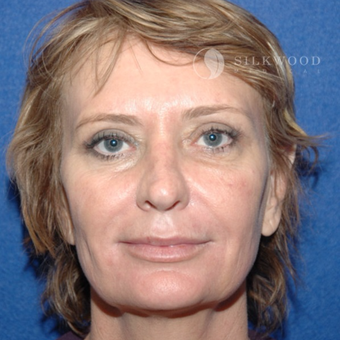 45-54 year old woman treated with Eyelid Surgery after 3760491