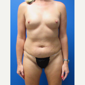 37 year old woman 3 months after her mommy makeover. before 3697255