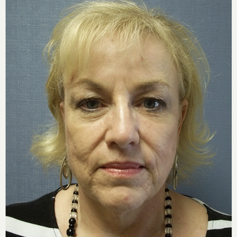 55-64 year old woman treated with Facelift before 3538803