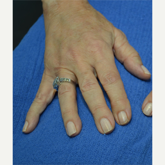 65-74 year old woman treated with Radiesse after 3725348