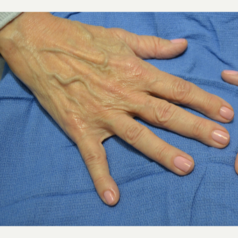 65-74 year old woman treated with Radiesse before 3725348